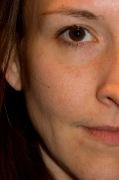 BEFORE Picture - Garnier Skin Renew Clinical Dark Spot Overnight Peel